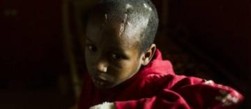 """Cet enfant blessé à la tête par un coup de machette """"résume, à lui seul, ce qu'on fait à son peuple tout entier"""", écrit le photographe sur le blog de l'AFP."""